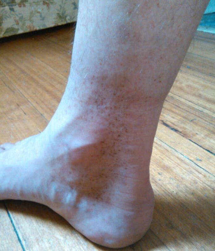 brown spots on ankles