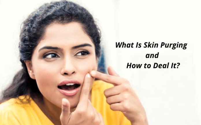 What Is Skin Purging and How to Deal It?